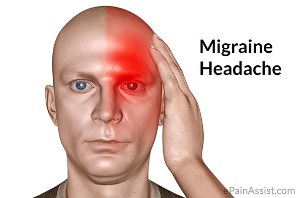 magnum the national migraine association home page